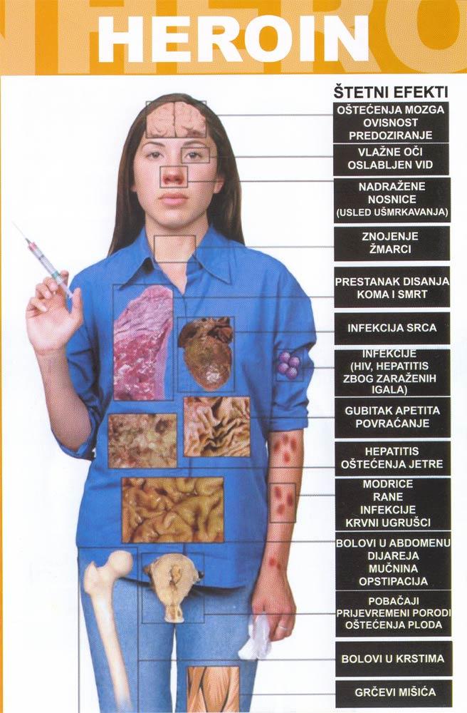 dugotrajna upotreba kortikosteroida